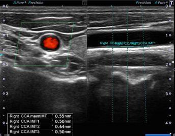 動脈硬化検診2